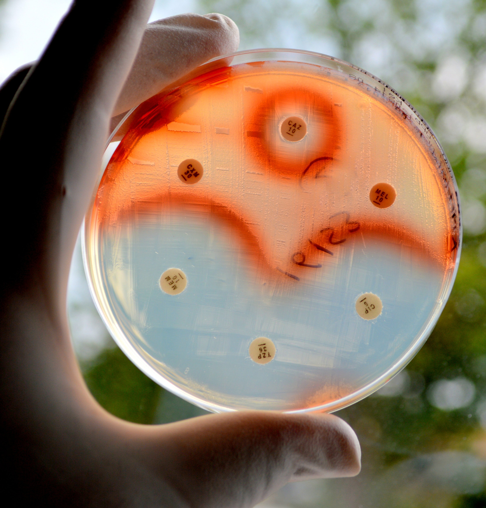 Antimicrobial resistance poses significant challenges to human health and drug development. Photo: iStock